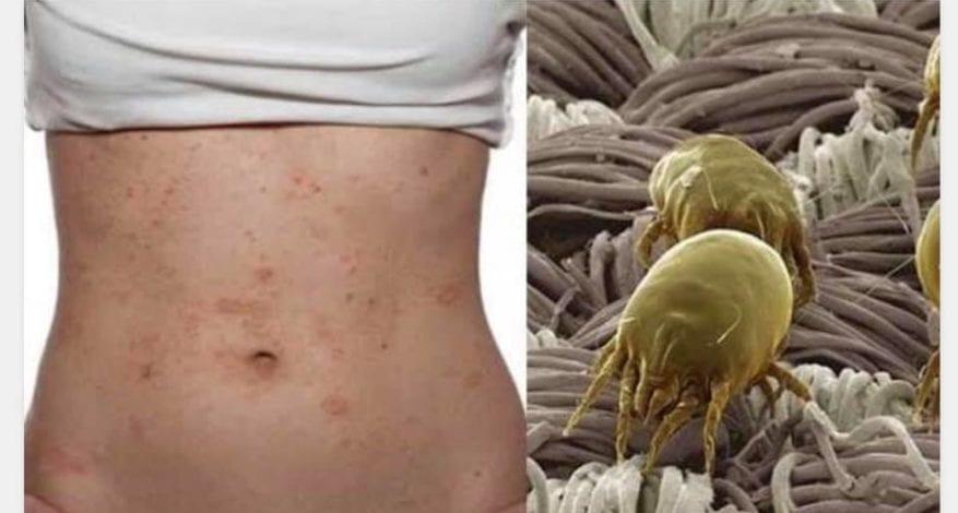 Infección ocasionada por ácaros